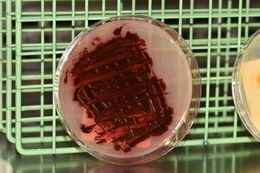 Image of <i>Serratia marcescens</i>