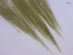 Image of <i>Aphanizomenon flosaquae</i>