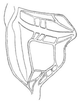 Image of Eastern Thread-legged Katydid