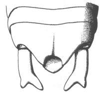 Image of Haldeman's Shieldback