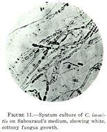 Image of <i>Coccidioides immitis</i> G. W. Stiles 1896