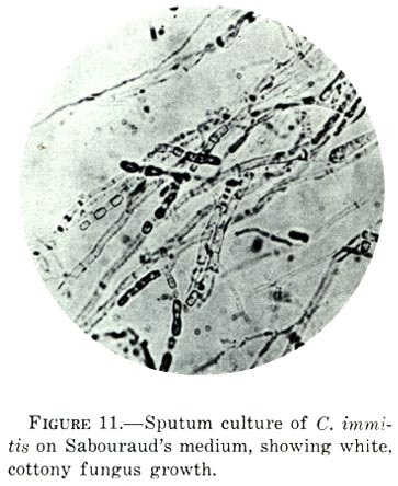 Image of <i>Coccidioides immitis</i> G. W. Stiles 1896