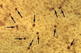 Image of <i>Chlamydia trachomatis</i>