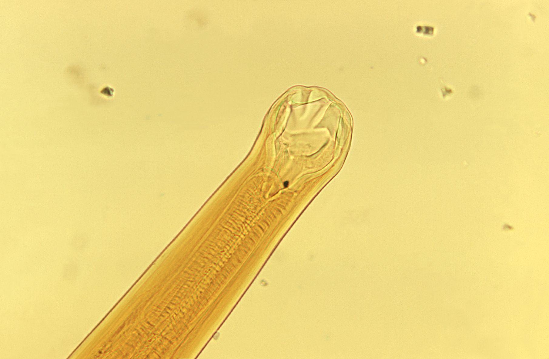 Image of <i>Ancylostoma braziliense</i>