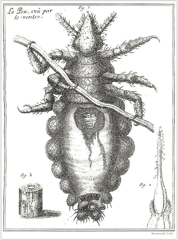 Image of <i>Pediculus humanus capitis</i>