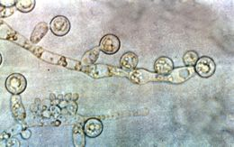 Image of <i>Candida albicans</i> (C. P. Robin) Berkhout 1923