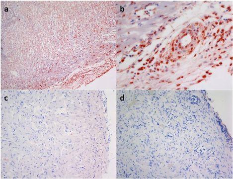 Image of influenza virus