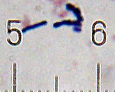 Image of <i>Bifidobacterium animalis</i>