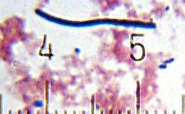 Image of Lactobacillus