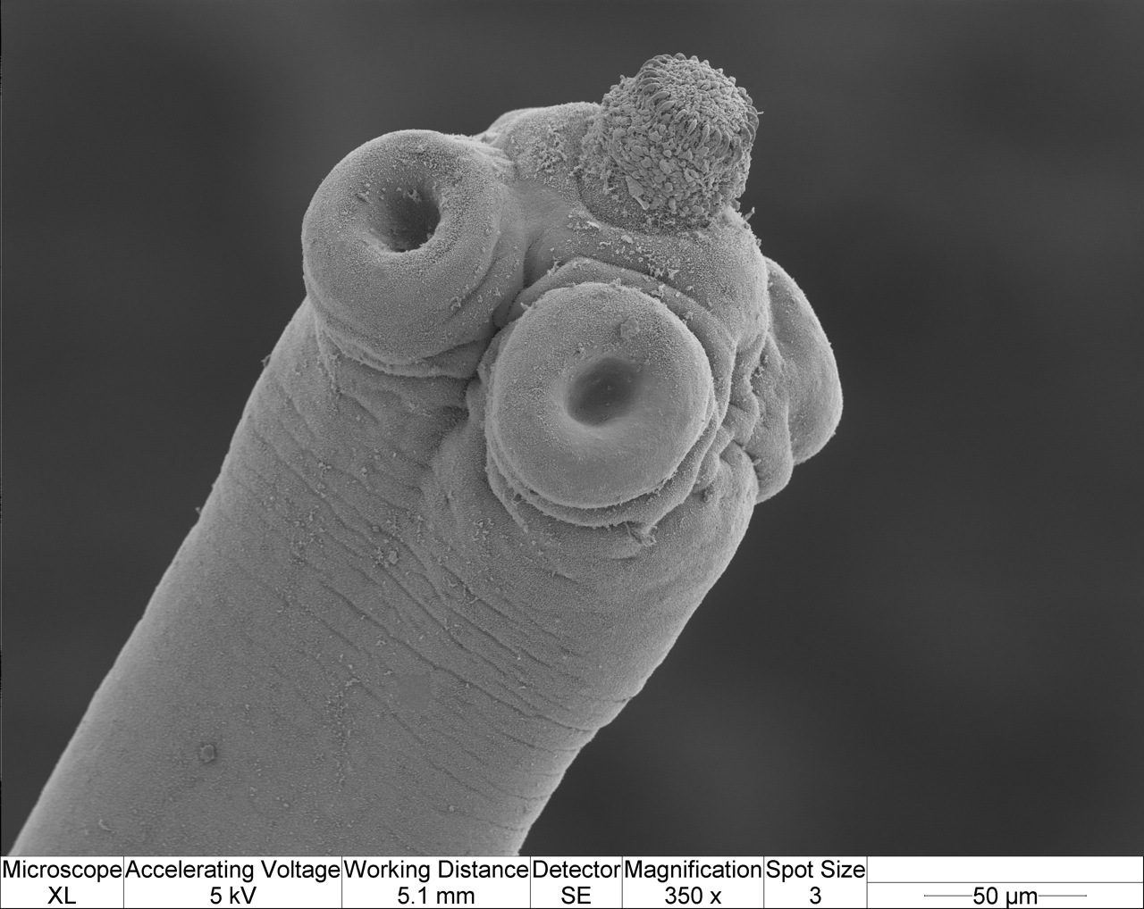 Image of Hymenolepis