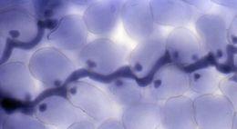 Image of <i>Hyaloperonospora parasitica</i>