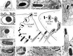 Image of <i>Listeria monocytogenes</i>