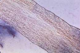 Image of <i>Trichophyton tonsurans</i> Malmsten 1848