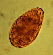 Image of <i>Paragonimus westermani</i>