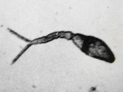 Image of <i>Schistosoma japonicum</i>