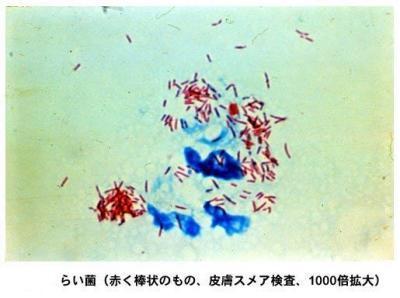 Image of Hansen's coccus spirilly