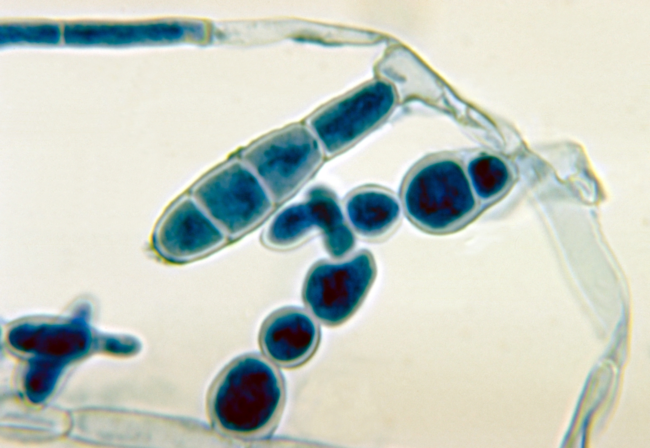 Image of <i>Epidermophyton floccosum</i> (Harz) Langeron & Miloch. 1930