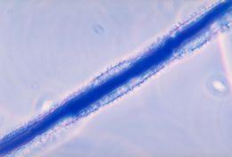 Image of <i>Aspergillus flavus</i> Link 1809