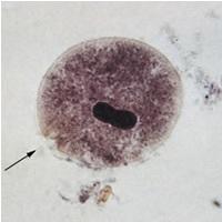 Image of <i>Balantidium coli</i> (Malmsten 1857) Stein 1863