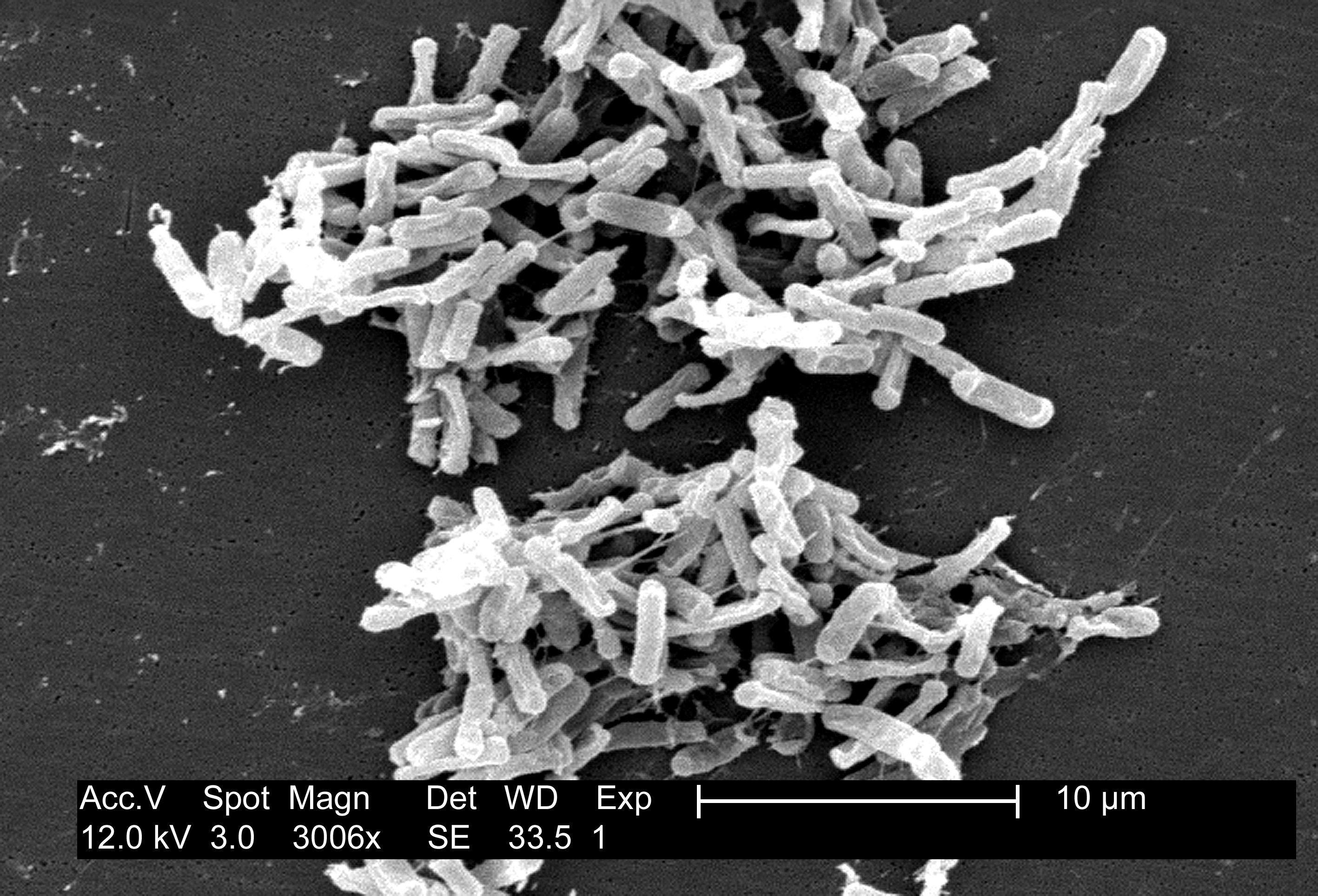 Image of <i>Clostridium difficile</i> (Hall & O'Toole 1935) Prevot 1938