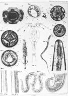 Image of Guinea worm