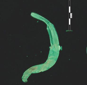 Image of <i>Telosentis exiguus</i> (von Linstow 1901)