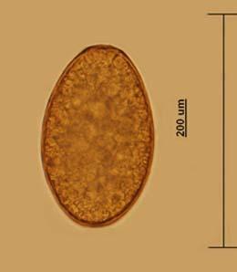 Image of <i>Fascioloides magna</i> (Bassi 1875) Bassi 1875