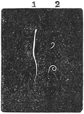 Image of <i>Enterobius vermicularis</i>