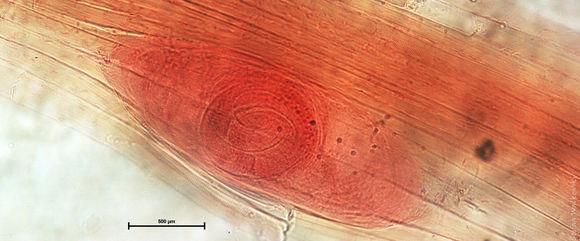 Image of <i>Trichinella spiralis</i> (Owen 1835)
