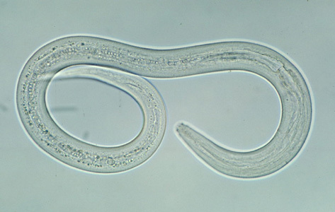 Image of <i>Ancylostoma duodenale</i> (Dubini 1843) Dubini 1843