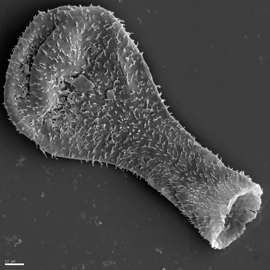 Image of Chitinozoa