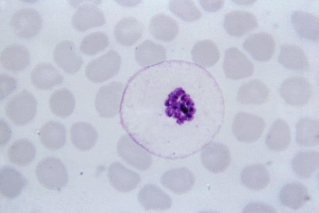 Image of Plasmodium malariae