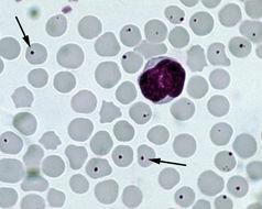 Image of Anaplasma
