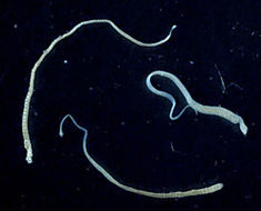 Image of Hymenolepis nana