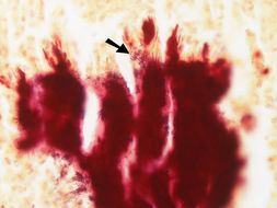 Image of Actinomyces
