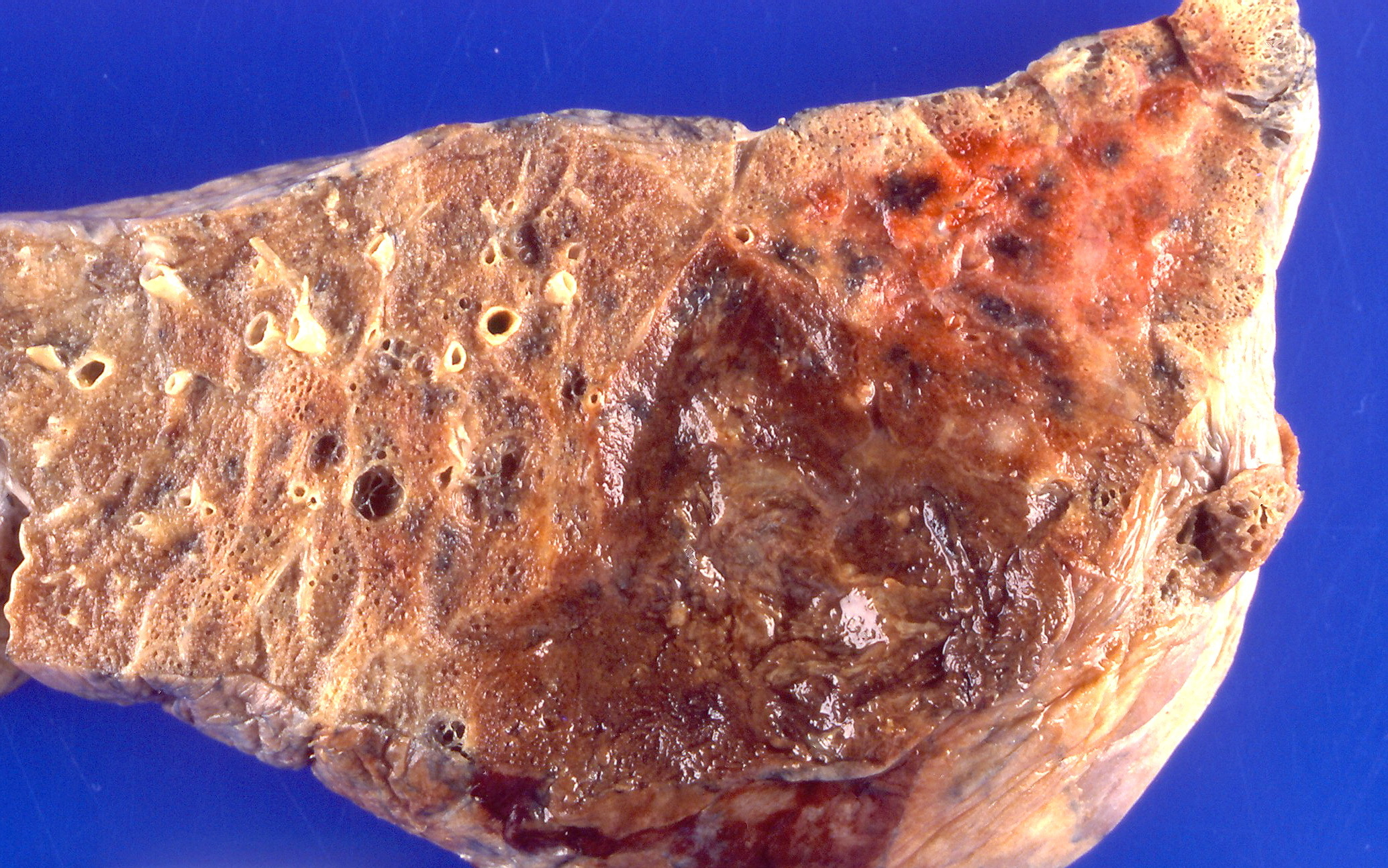 Image of Pseudomonas