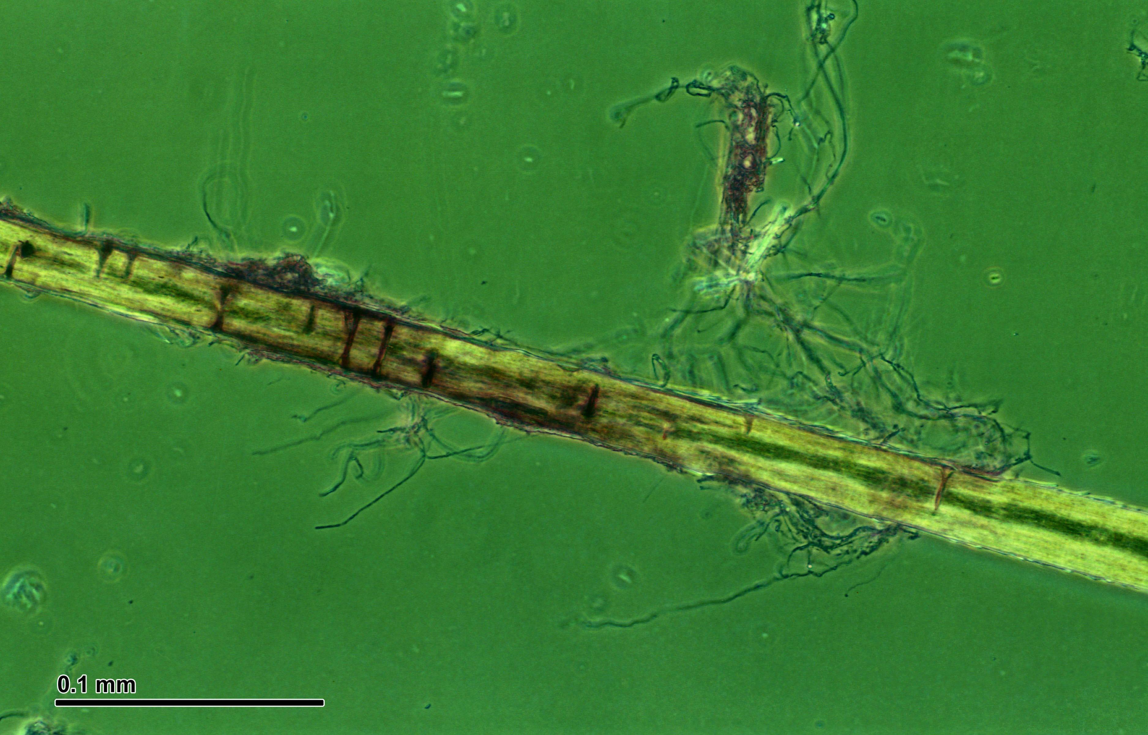 Image of <i>Trichophyton interdigitale</i>
