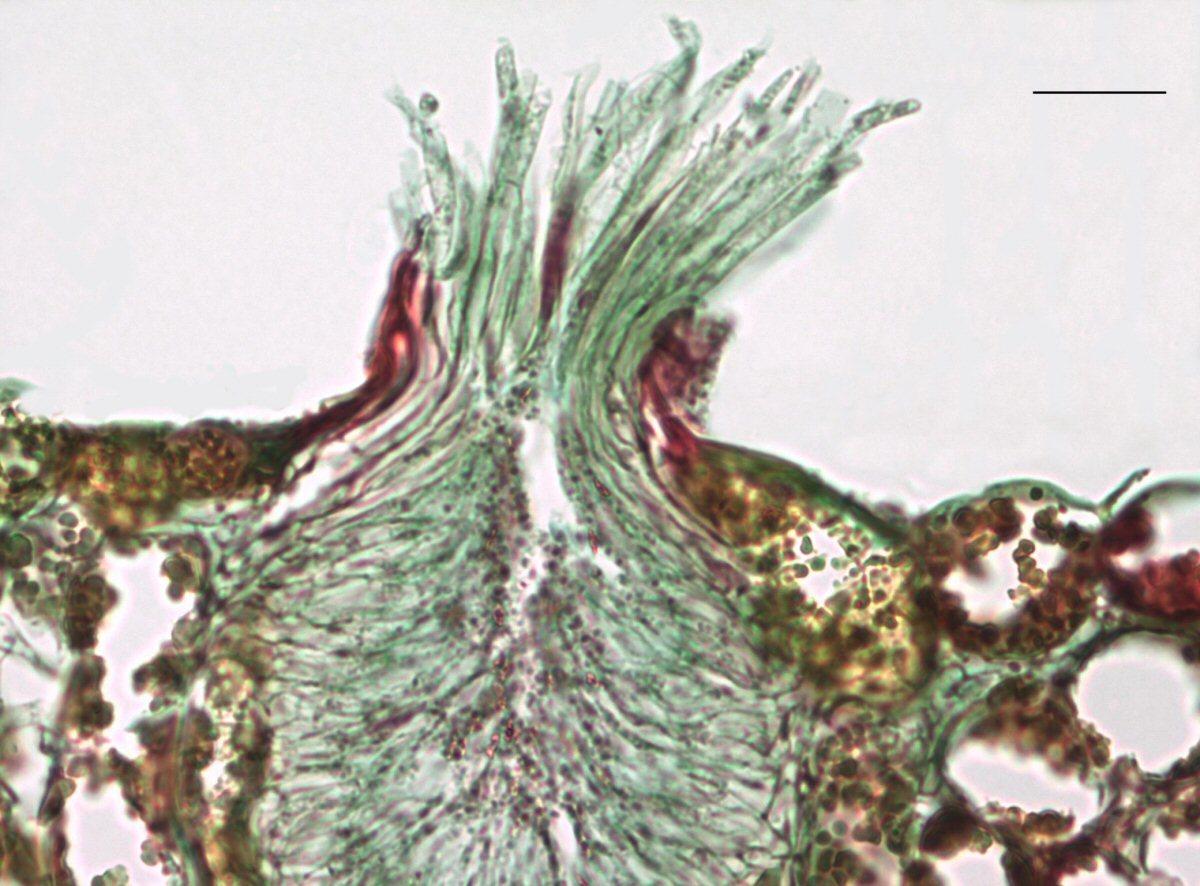 Image of Stem rust
