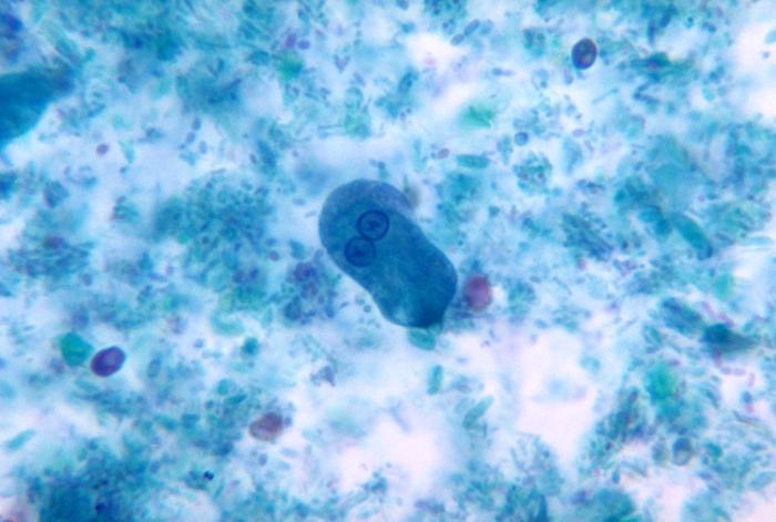 Image of <i>Entamoeba histolytica</i>