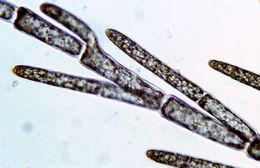 Image of Cladophora