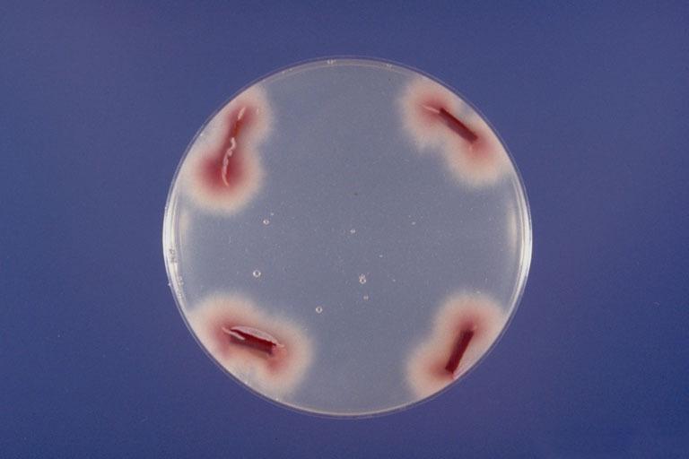 Image of Panama disease