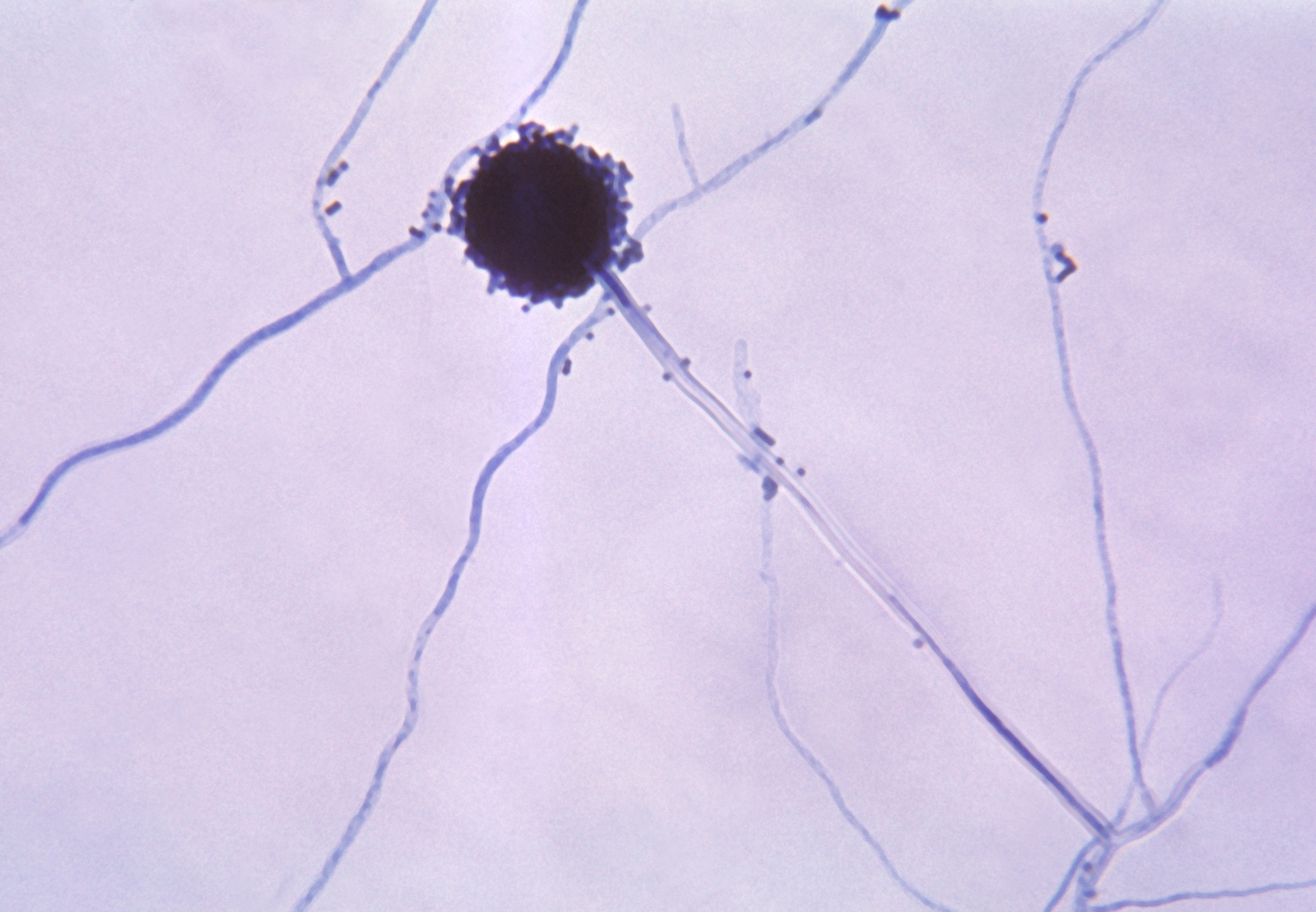 Image of <i>Aspergillus niger</i> Tiegh. 1867