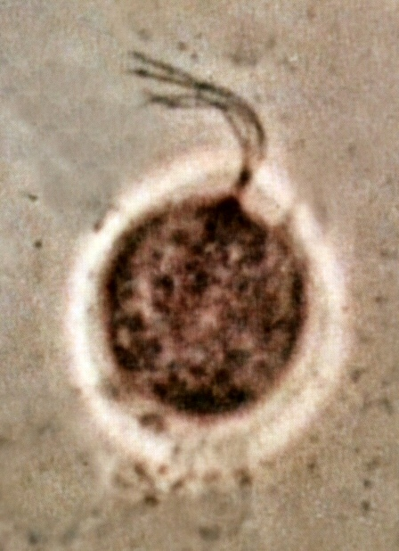 Image of <i>Trichomonas vaginalis</i>