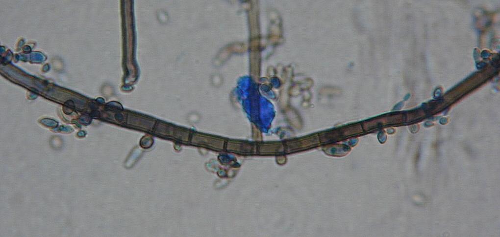 Image of <i>Aureobasidium pullulans</i> (de Bary & Löwenthal) G. Arnaud 1918