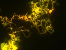 Image of <i>Mycobacterium tuberculosis</i>
