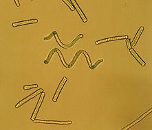 Image of Spirulina