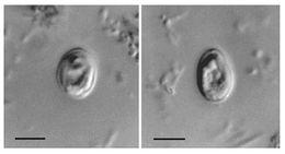 Image of Cryptosporidium