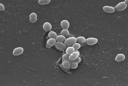 Image of <i>Enterococcus faecalis</i>