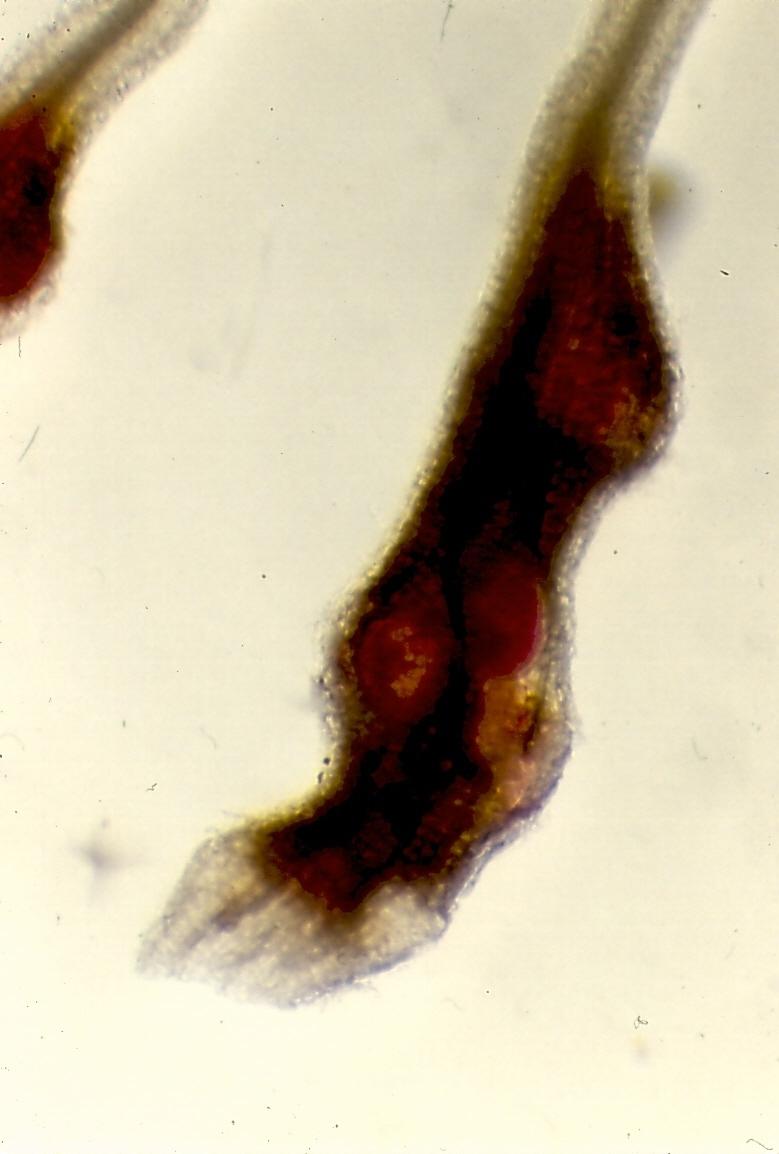 Image of <i>Meloidogyne arenaria</i> (Neal 1889) Neal 1889