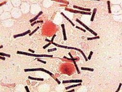 Image of <i>Bacillus anthracis</i>